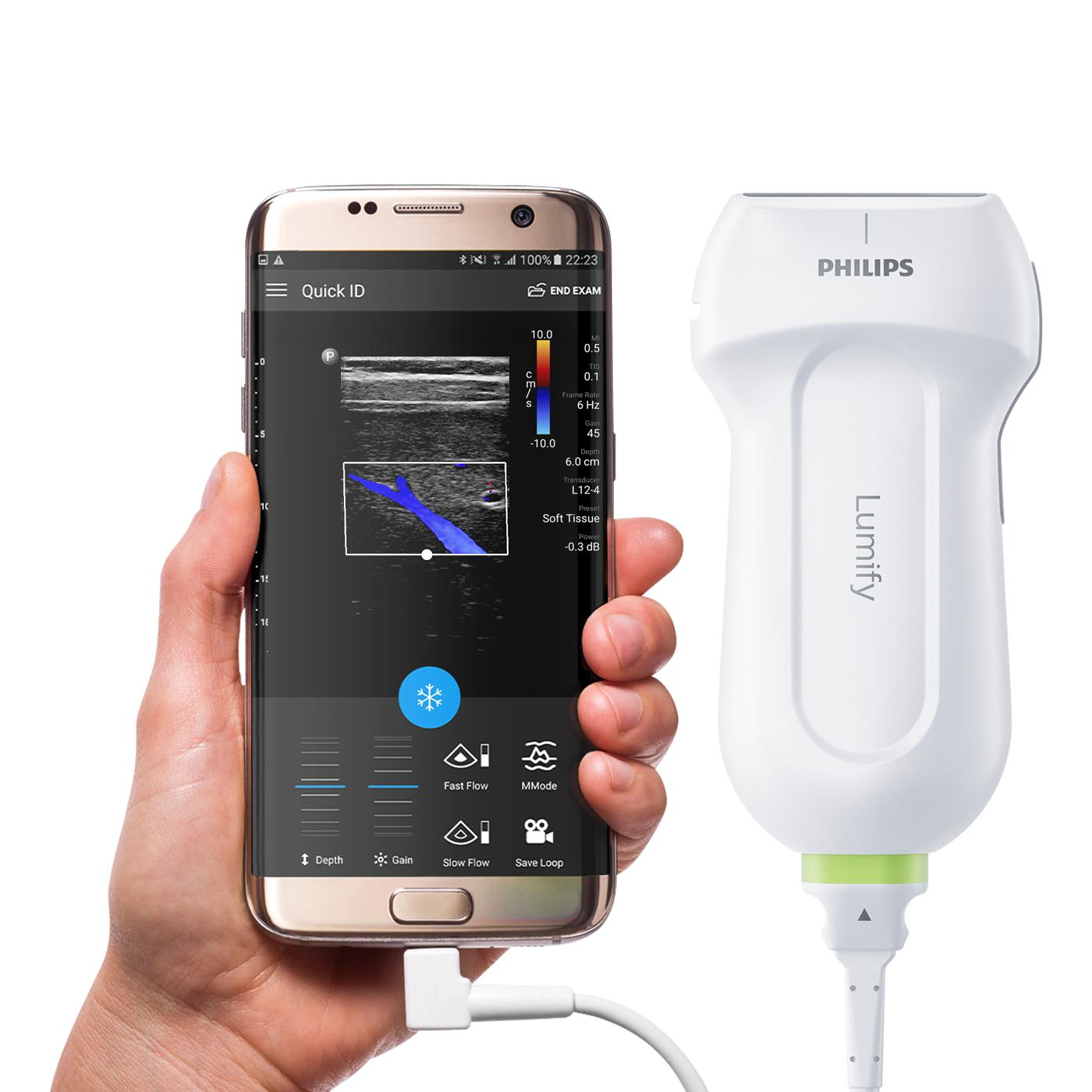 Philips Lumify – pierwsza na rynku głowica USG z aplikacją mobilną już dostępna w Polsce